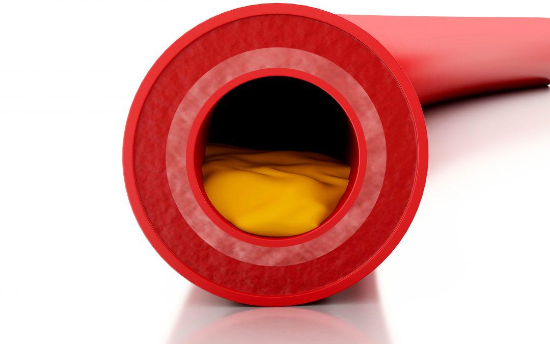 High Cholesterol Thyroid